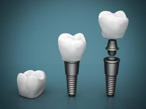 Dental Implants Moorabbin