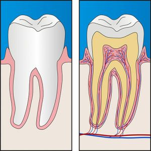 Root Canal Treatment Moorabbin
