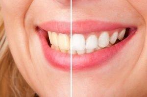 Teeth Whitening Moorabbin