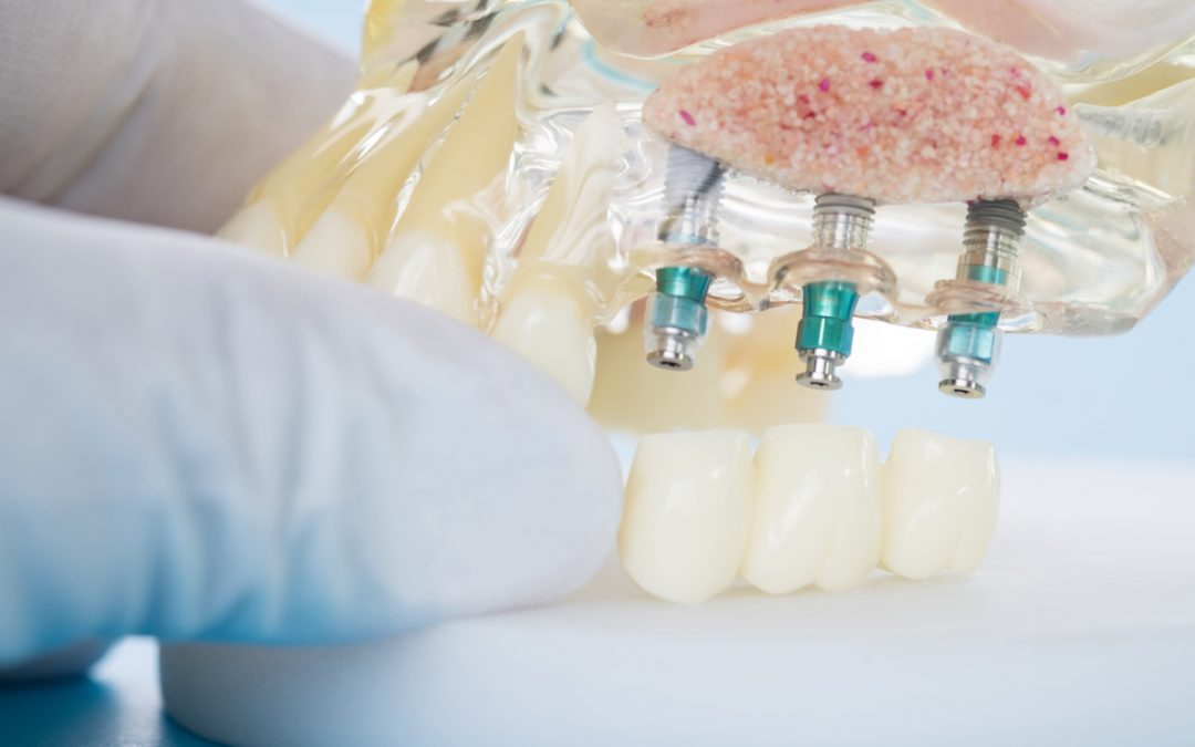 Dental Implants In Moorabbin: The Benefits And Advantages