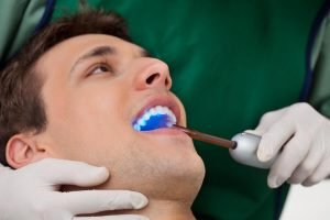 Dental Sealants Moorabbin