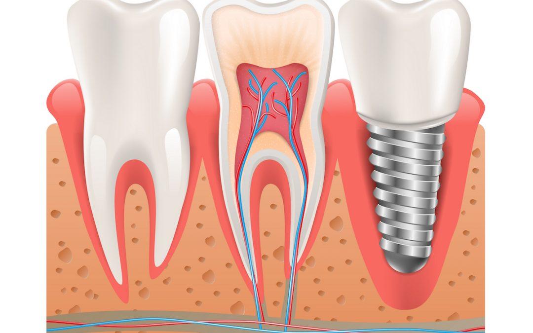 Dental Implants: Should You Shop Around?
