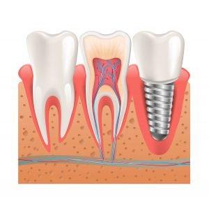 Dental Implants Should You Shop Around Moorabbin