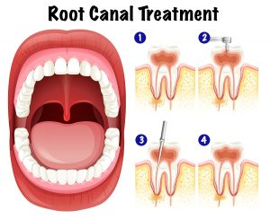 signs that you need root canal treatment moorabbin