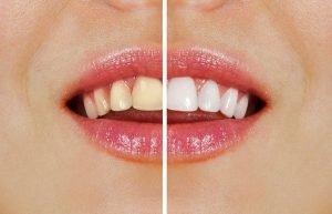 types of teeth whitening in moorabbin