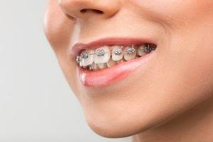 orthodontics moorabbin