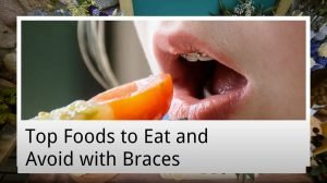 top foods to eat and avoid with braces from captivate dental
