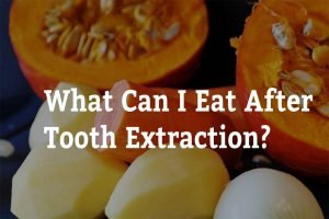 what can i eat after tooth extraction 7 tips from captivate dental
